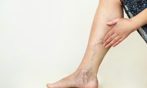 What Are the Causes of Varicose Veins in Legs?