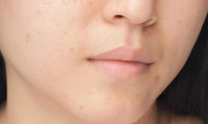 Attain Terrible Effects on Skin with Skin Rejuvenation
